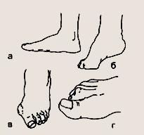 изменения формы стопы