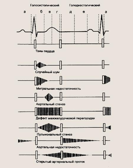 сердечные шумы